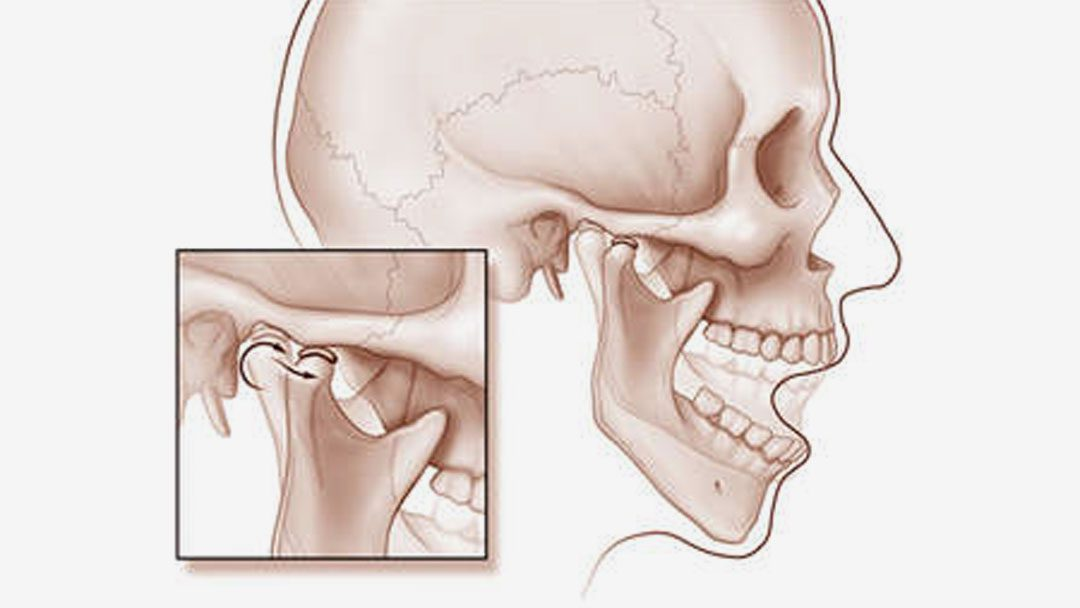TMJ Disorder | Queen Mary Holistic Center